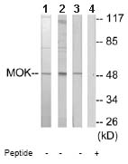 Western blot - MOK protein kinase antibody (ab64815)
