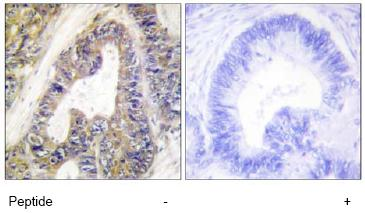 Immunohistochemistry (Formalin/PFA-fixed paraffin-embedded sections) - EPS8L1 antibody (ab64839)