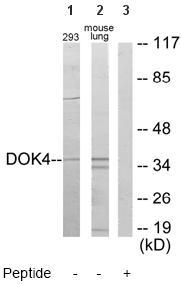 Western blot - DOK4 antibody (ab64841)