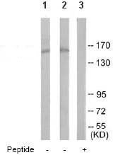 Western blot - SMRC2 antibody (ab64853)