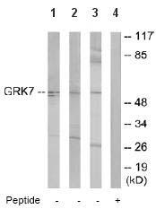 Western blot - GRK7 antibody (ab64854)