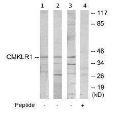 Western blot - CMKLR1 antibody (ab64881)