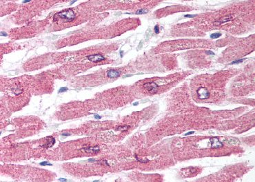 Immunohistochemistry (Formalin/PFA-fixed paraffin-embedded sections) - XK antibody (ab64895)