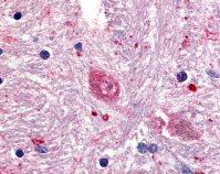 Immunohistochemistry (Formalin/PFA-fixed paraffin-embedded sections) - GPR88 antibody (ab64905)