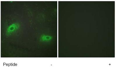 Immunocytochemistry/ Immunofluorescence - TNFSF9 antibody (ab64912)