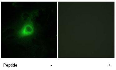 Immunocytochemistry/ Immunofluorescence - GRK6 antibody (ab64915)