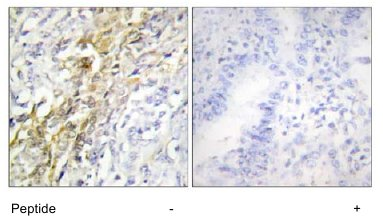 Immunohistochemistry (Formalin/PFA-fixed paraffin-embedded sections) - Caseine Kinase 1 alpha antibody (ab64939)