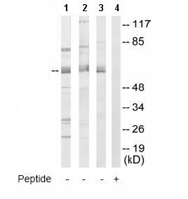 Western blot - Cleavage stimulation factor 2 antibody (ab64942)