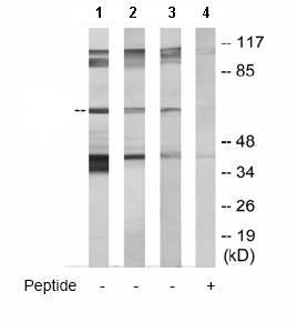 Western blot - GRK5 antibody (ab64943)