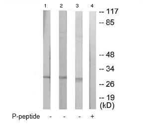 Western blot - p27 KIP 1 (phospho T198) antibody (ab64949)