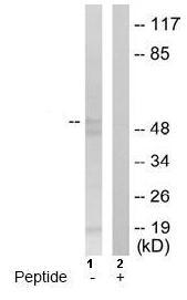 Western blot - DKC1 antibody (ab64955)