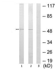 Western blot - SPT3 antibody (ab64956)