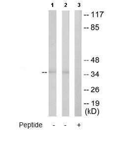 Western blot - ATP6IP2 antibody (ab64957)