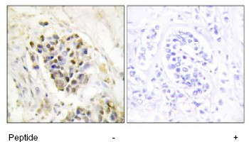 Immunohistochemistry (Formalin/PFA-fixed paraffin-embedded sections) - TRAP220/MED1 antibody (ab64965)