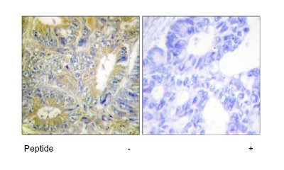 Immunohistochemistry (Formalin/PFA-fixed paraffin-embedded sections) - Desmin antibody (ab64969)