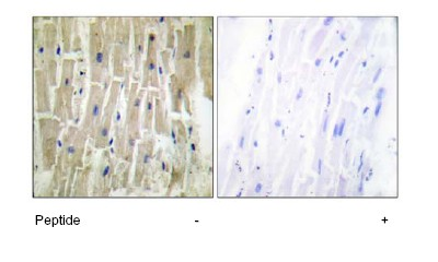Immunohistochemistry (Formalin/PFA-fixed paraffin-embedded sections) - PDLIM1 antibody (ab64971)