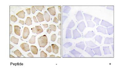 Immunohistochemistry (Formalin/PFA-fixed paraffin-embedded sections) - MAPKAP Kinase 3 antibody (ab64972)