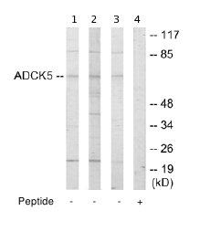 Western blot - ADCK5 antibody (ab64978)