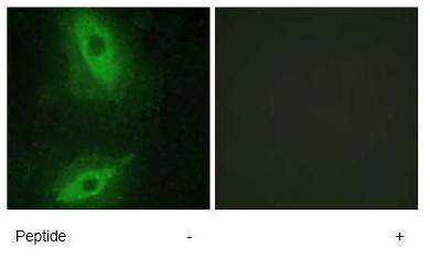 Immunocytochemistry/ Immunofluorescence - TL1A antibody (ab64986)