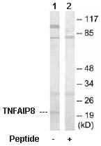 Western blot - TNFAIP8 antibody (ab64988)