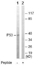 Western blot - p53 antibody (ab64993)