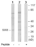 Western blot - Homeobox protein SIX6 antibody (ab64995)