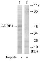 Western blot - beta 1 Adrenergic Receptor antibody (ab64996)