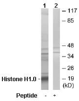 Western blot - Histone H1.0 antibody (ab65000)