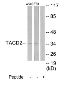 Western blot - TACD2 antibody (ab65006)