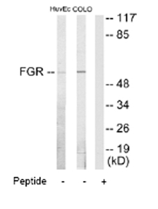 Western blot - FGR antibody (ab65007)