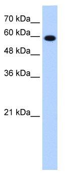 Western blot - STIP1 antibody (ab65046)