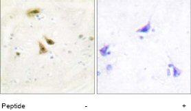 Immunohistochemistry (Formalin/PFA-fixed paraffin-embedded sections) - UBF1 antibody (ab65059)