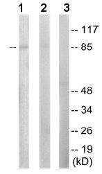 Western blot - PFKL antibody (ab65066)