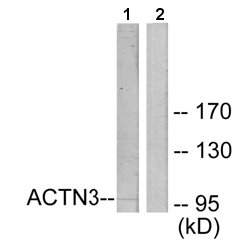Western blot - ACTN3 antibody (ab65067)