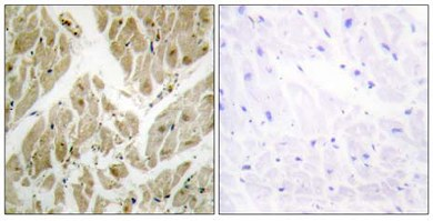 Immunohistochemistry (Formalin/PFA-fixed paraffin-embedded sections) - Apoptosis inhibitor 5   antibody (ab65068)