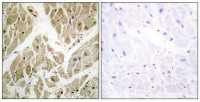 Immunohistochemistry (Formalin/PFA-fixed paraffin-embedded sections) - Apoptosis inhibitor 5   antibody (ab65068)