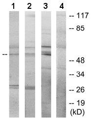 Western blot - Apoptosis inhibitor 5   antibody (ab65068)