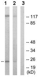 Western blot - Ephrin A1 antibody (ab65072)