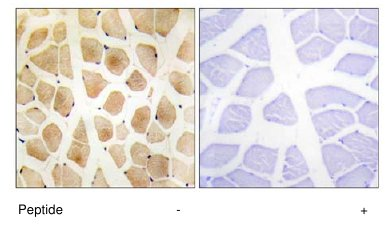 Immunohistochemistry (Formalin/PFA-fixed paraffin-embedded sections) - SLK antibody (ab65113)