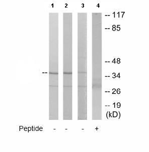 Western blot - MNAT1 antibody (ab65125)