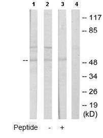 Western blot - CYP2A13 antibody (ab65127)