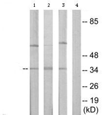 Western blot - ICAD  antibody (ab65129)