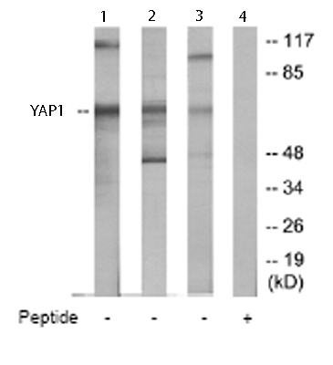 Western blot - YAP1 antibody (ab65161)