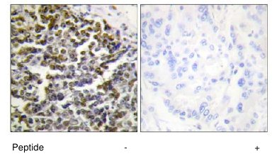 Immunohistochemistry (Formalin/PFA-fixed paraffin-embedded sections) - Treacher Collins syndrome protein antibody (ab65212)