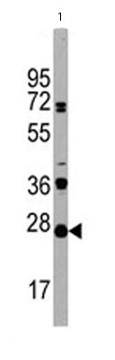 Western blot - CD3 antibody - Aminoterminal end (ab65229)