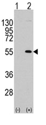 Western blot - MEF2C antibody (ab65252)