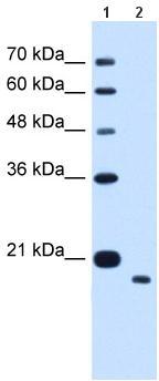 Western blot - TMEM91 antibody (ab65558)