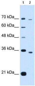 Western blot - PHD finger protein 6 antibody (ab65560)