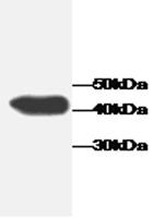 Western blot - BLVRB antibody [1] (ab65629)
