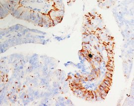 Immunohistochemistry (Formalin/PFA-fixed paraffin-embedded sections) - Morg1 antibody - Aminoterminal end (ab65870)